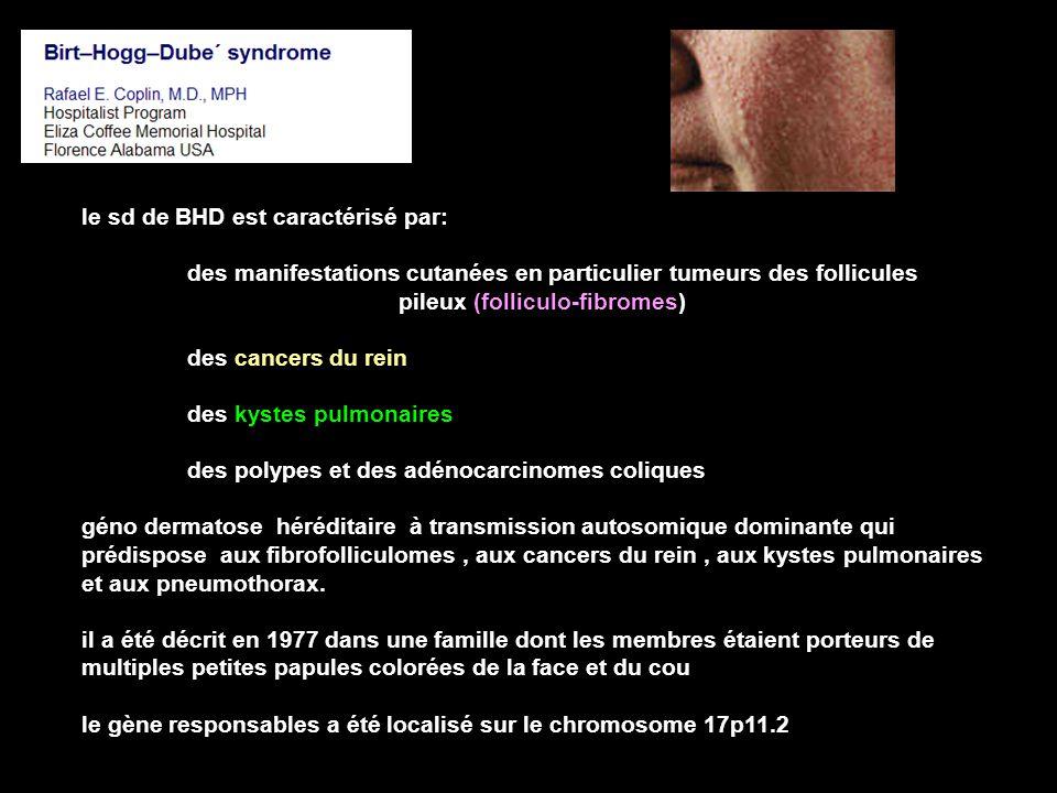 le sd de BHD est caractérisé par: des manifestations cutanées en particulier tumeurs des follicules pileux (folliculo-fibromes) des cancers du rein des kystes pulmonaires des polypes et des adénocarcinomes coliques géno dermatose héréditaire à transmission autosomique dominante qui prédispose aux fibrofolliculomes, aux cancers du rein, aux kystes pulmonaires et aux pneumothorax.
