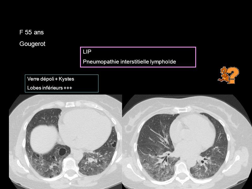F 55 ans Gougerot LIP Pneumopathie interstitielle lymphoïde Verre dépoli + Kystes Lobes inférieurs +++