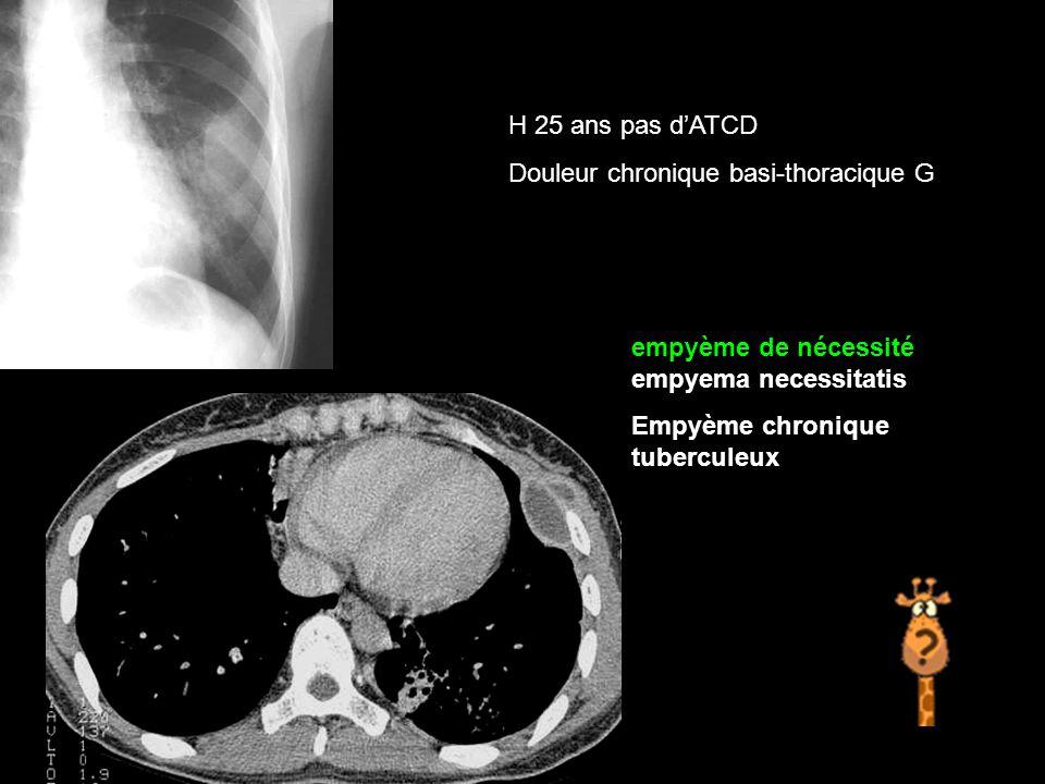 H 25 ans pas d'ATCD Douleur chronique basi-thoracique G empyème de nécessité empyema necessitatis Empyème chronique tuberculeux