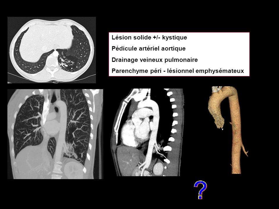 Lésion solide +/- kystique Pédicule artériel aortique Drainage veineux pulmonaire Parenchyme péri - lésionnel emphysémateux