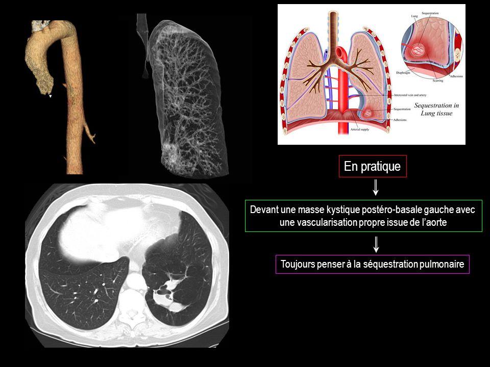 En pratique Devant une masse kystique postéro-basale gauche avec une vascularisation propre issue de l'aorte Toujours penser à la séquestration pulmonaire