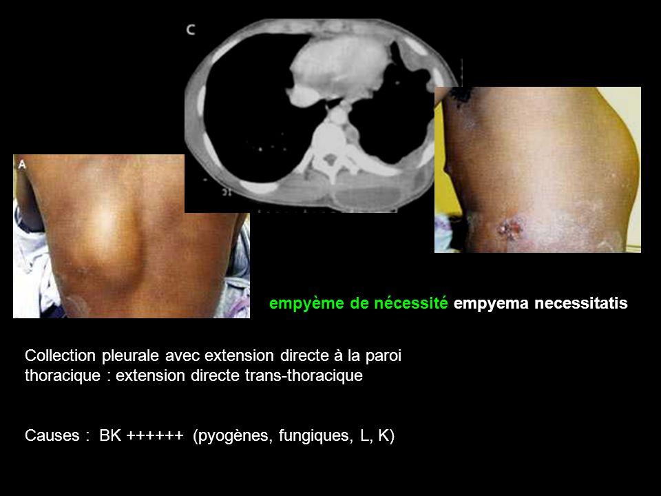 Collection pleurale avec extension directe à la paroi thoracique : extension directe trans-thoracique Causes : BK ++++++ (pyogènes, fungiques, L, K) empyème de nécessité empyema necessitatis
