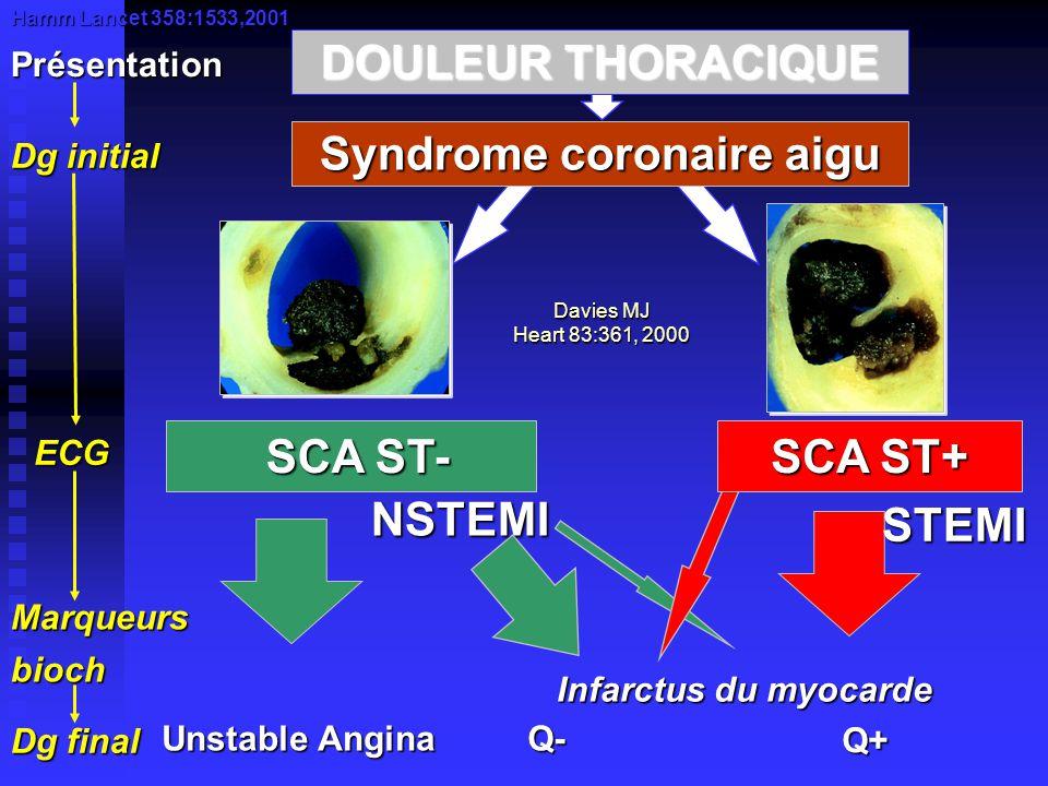 Classification des SCA SCA avec élévation persistante du ST SCA sans élévation persistante du ST Infarctus QInfarctus non QAngor instable CPK > 2N Troponines + CPK < 2N Troponines - CPK > 2N ou Troponines + Reperfusion Traitements antithrombotiques Stratégie invasive