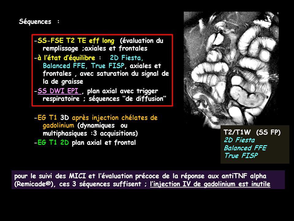 pour le suivi des MICI et l'évaluation précoce de la réponse aux antiTNF alpha (Remicade®), ces 3 séquences suffisent ; l'injection IV de gadolinium e