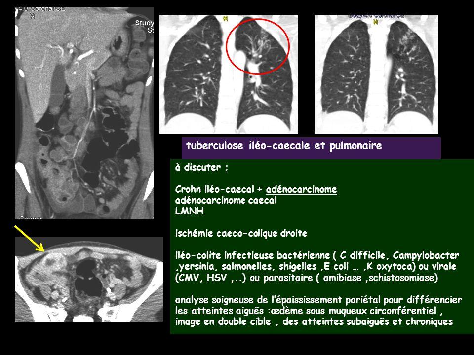 tuberculose iléo-caecale et pulmonaire à discuter ; Crohn iléo-caecal + adénocarcinome adénocarcinome caecal LMNH ischémie caeco-colique droite iléo-c