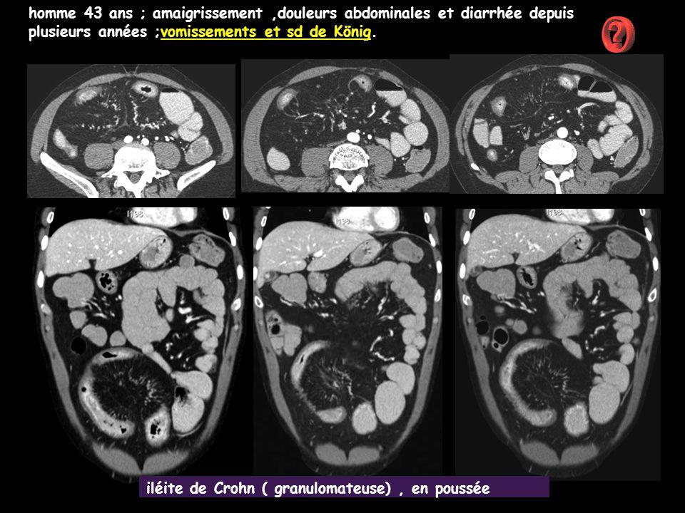 homme 43 ans ; amaigrissement,douleurs abdominales et diarrhée depuis plusieurs années ;vomissements et sd de König. iléite de Crohn ( granulomateuse)