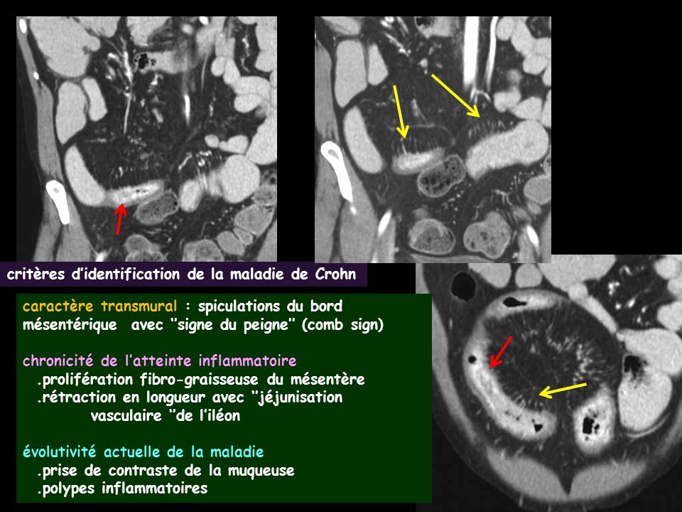 adénocarcinome lieberkuhnien compliquant la maladie de Crohn.ce sont souvent des adénocarcinomes à cellules mucineuses ''en bague à chaton''.avec une forte stroma reaction collagène.la paroi est épaissie avec un rehaussement massif et progressif.les dents du peigne disparaissent au niveau de la tumeur