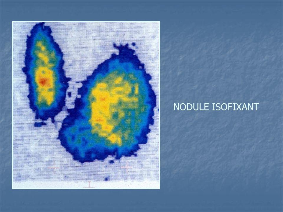 NODULE ISOFIXANT