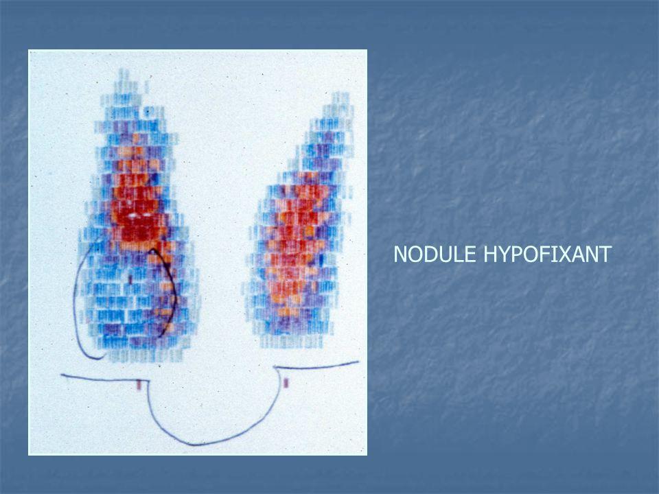 NODULE HYPOFIXANT