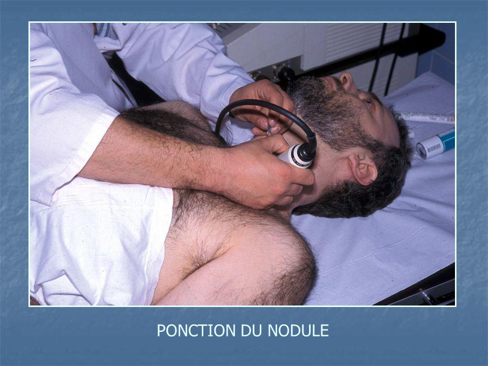 PONCTION DU NODULE