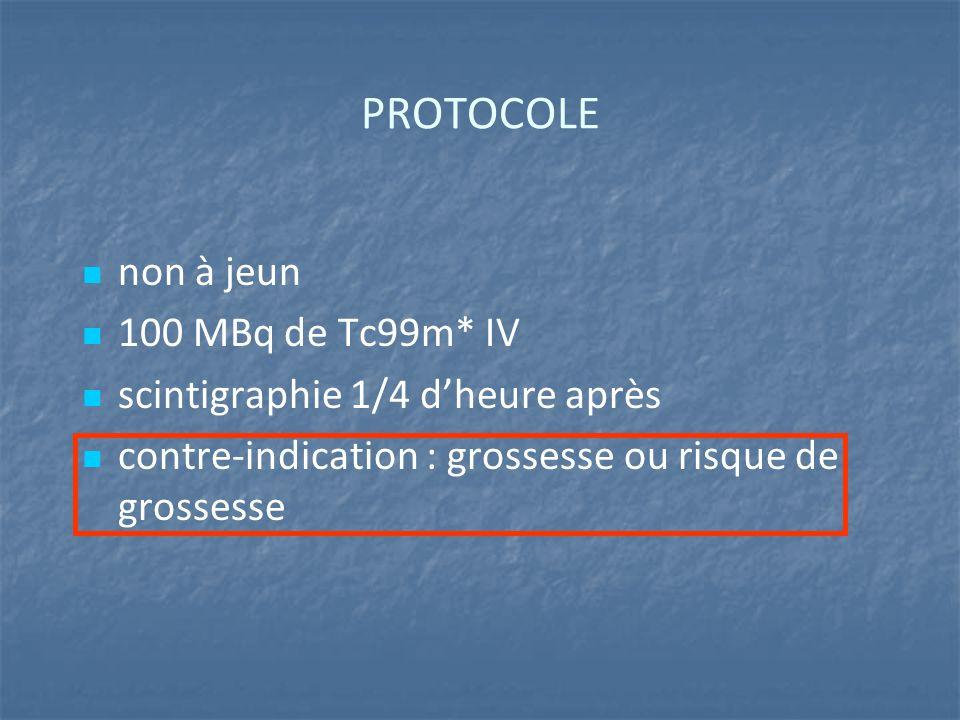 PROTOCOLE non à jeun 100 MBq de Tc99m* IV scintigraphie 1/4 d'heure après contre-indication : grossesse ou risque de grossesse