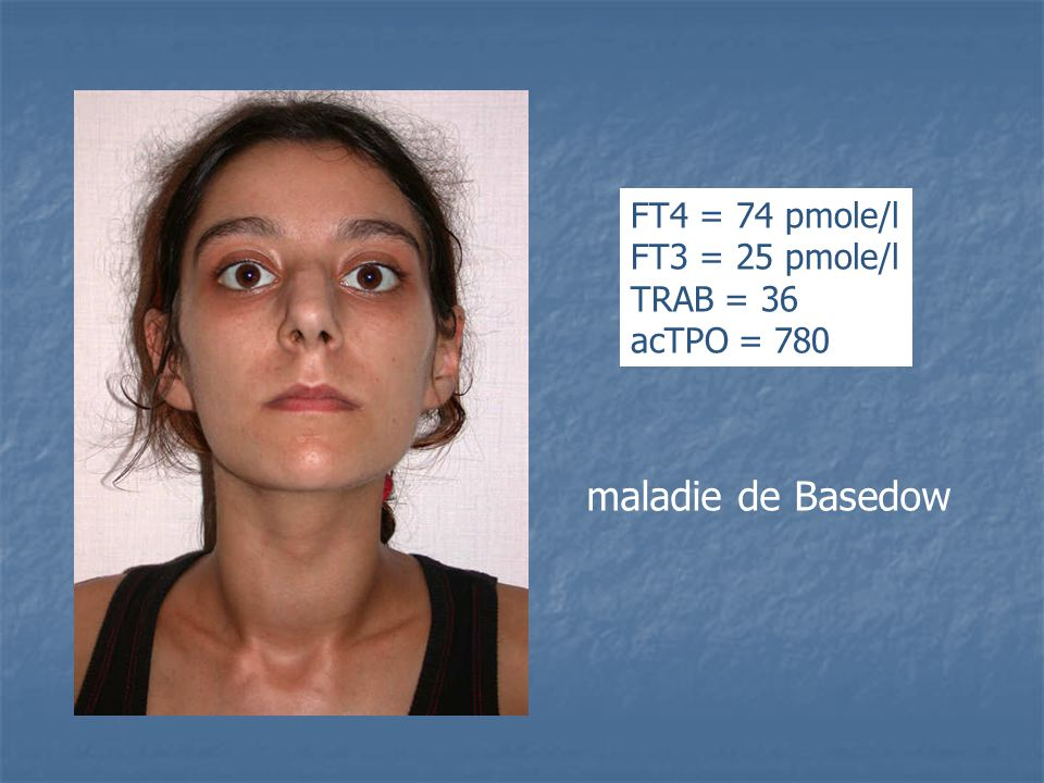 maladie de Basedow FT4 = 74 pmole/l FT3 = 25 pmole/l TRAB = 36 acTPO = 780