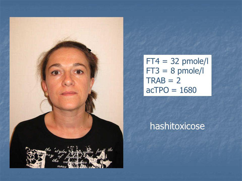 hashitoxicose FT4 = 32 pmole/l FT3 = 8 pmole/l TRAB = 2 acTPO = 1680