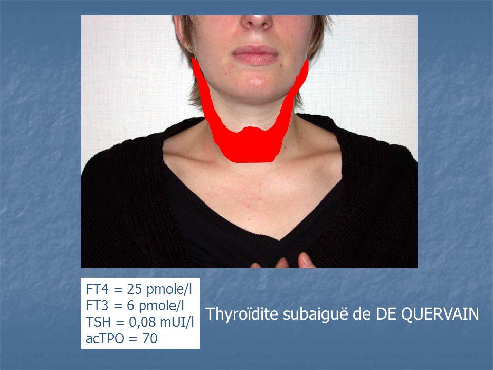FT4 = 25 pmole/l FT3 = 6 pmole/l TSH = 0,08 mUI/l acTPO = 70 Thyroïdite subaiguë de DE QUERVAIN