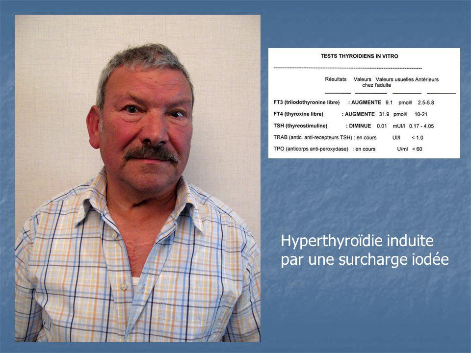 Hyperthyroïdie induite par une surcharge iodée