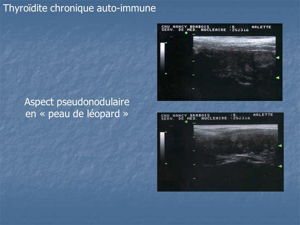Thyroïdite chronique auto-immune Aspect pseudonodulaire en « peau de léopard »