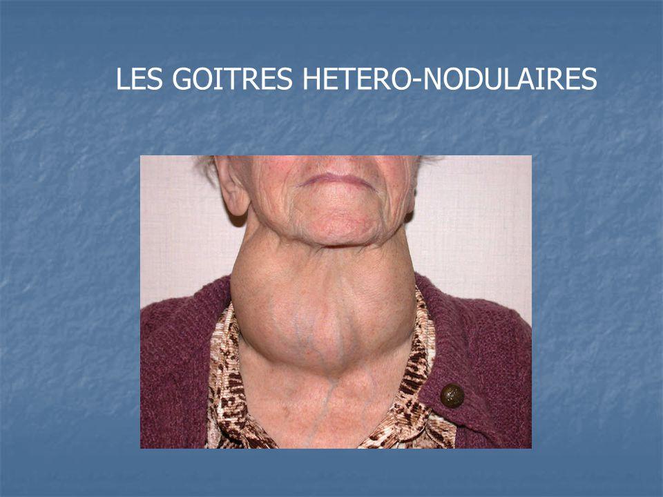 LES GOITRES HETERO-NODULAIRES