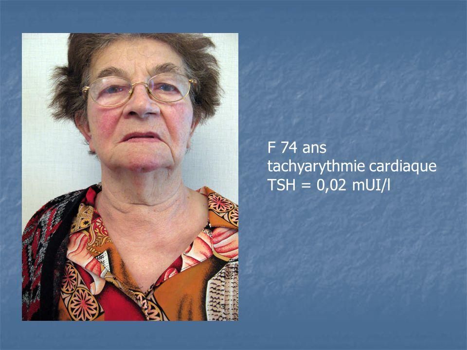 F 74 ans tachyarythmie cardiaque TSH = 0,02 mUI/l