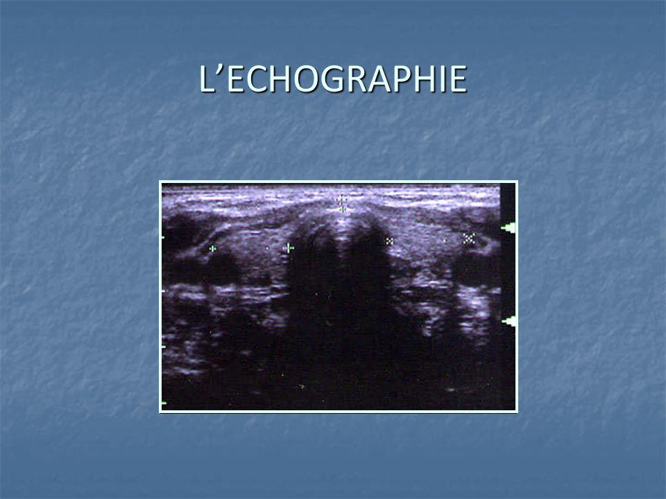 L'ECHOGRAPHIE