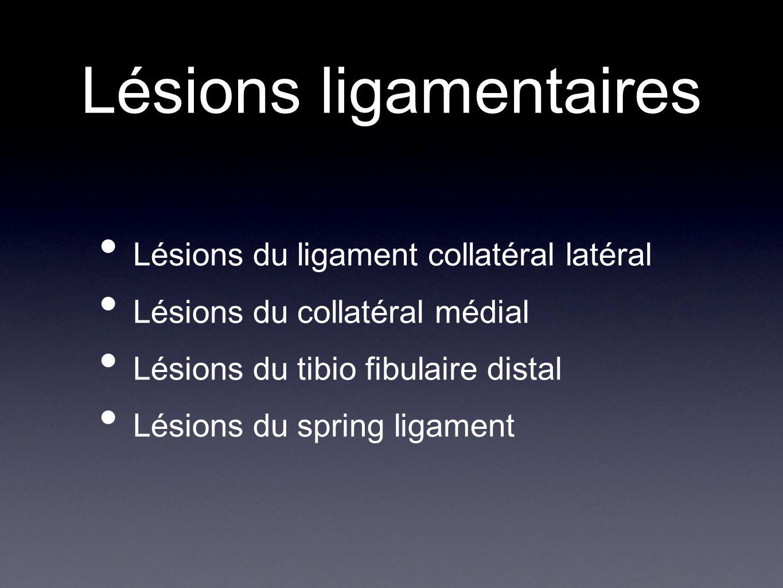 Lésions ligamentaires Lésions du ligament collatéral latéral Lésions du collatéral médial Lésions du tibio fibulaire distal Lésions du spring ligament