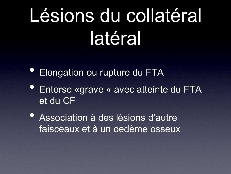 Lésions du collatéral latéral Elongation ou rupture du FTA Entorse «grave « avec atteinte du FTA et du CF Association à des lésions d'autre faisceaux