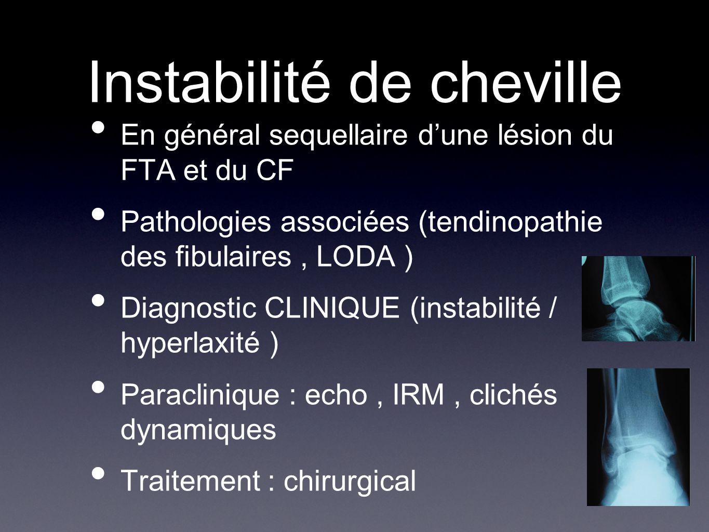 Instabilité de cheville En général sequellaire d'une lésion du FTA et du CF Pathologies associées (tendinopathie des fibulaires, LODA ) Diagnostic CLI
