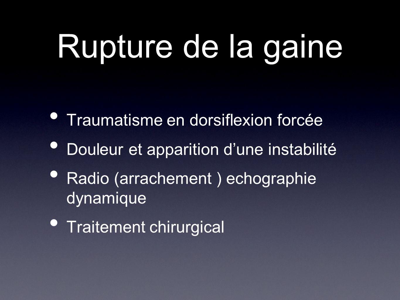 Rupture de la gaine Traumatisme en dorsiflexion forcée Douleur et apparition d'une instabilité Radio (arrachement ) echographie dynamique Traitement c