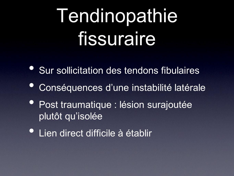 Tendinopathie fissuraire Sur sollicitation des tendons fibulaires Conséquences d'une instabilité latérale Post traumatique : lésion surajoutée plutôt