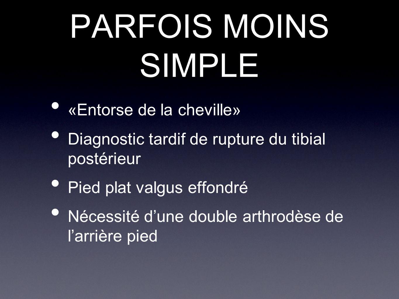 PARFOIS MOINS SIMPLE «Entorse de la cheville» Diagnostic tardif de rupture du tibial postérieur Pied plat valgus effondré Nécessité d'une double arthr