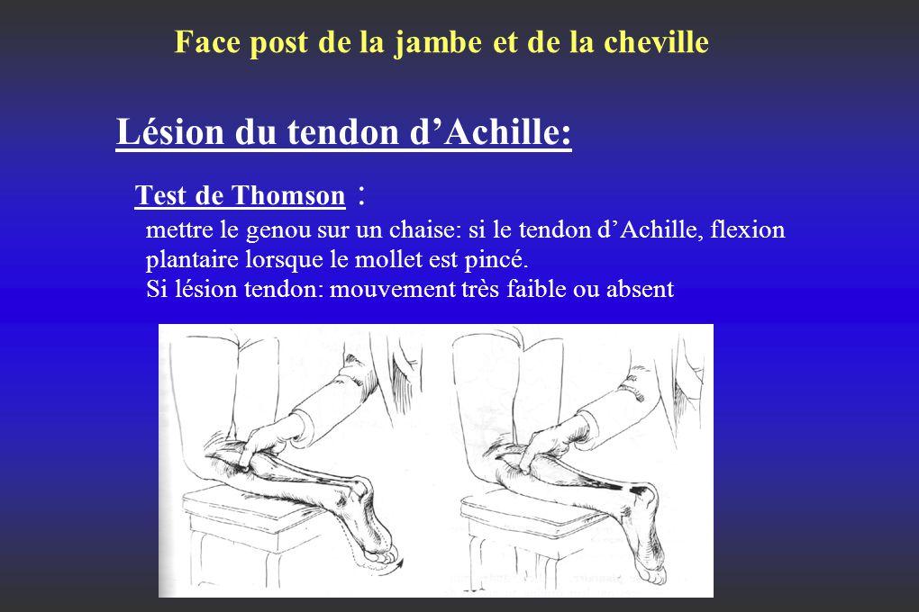 Face post de la jambe et de la cheville Lésion du tendon d'Achille: Test de Thomson : mettre le genou sur un chaise: si le tendon d'Achille, flexion plantaire lorsque le mollet est pincé.