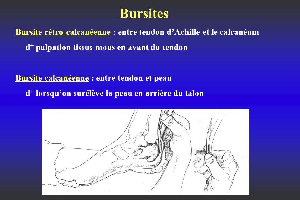 Bursites Bursite rétro-calcanéenne : entre tendon d'Achille et le calcanéum d + palpation tissus mous en avant du tendon Bursite calcanéenne : entre tendon et peau d + lorsqu'on surélève la peau en arrière du talon