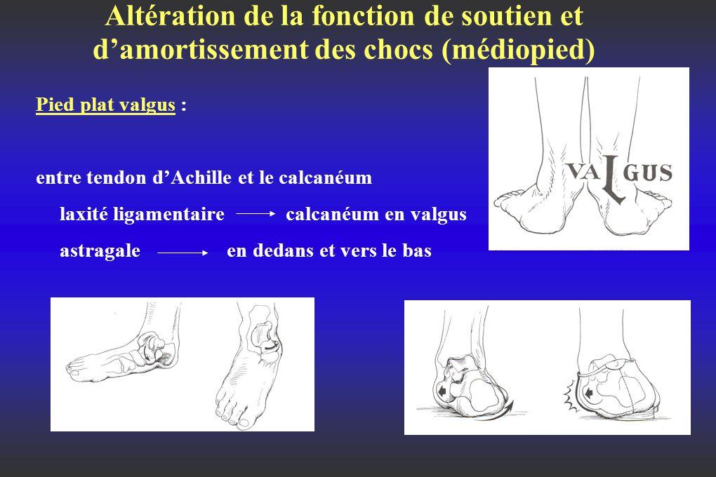 Altération de la fonction de soutien et d'amortissement des chocs (médiopied) Pied plat valgus : entre tendon d'Achille et le calcanéum laxité ligamentaire calcanéum en valgus astragale en dedans et vers le bas