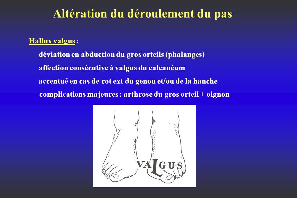 Altération du déroulement du pas Hallux valgus : déviation en abduction du gros orteils (phalanges) affection consécutive à valgus du calcanéum accentué en cas de rot ext du genou et/ou de la hanche complications majeures : arthrose du gros orteil + oignon