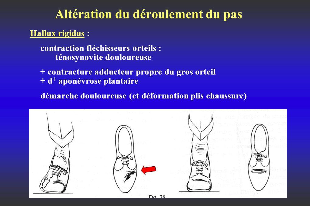 Altération du déroulement du pas Hallux rigidus : contraction fléchisseurs orteils : ténosynovite douloureuse + contracture adducteur propre du gros orteil + d + aponévrose plantaire démarche douloureuse (et déformation plis chaussure)