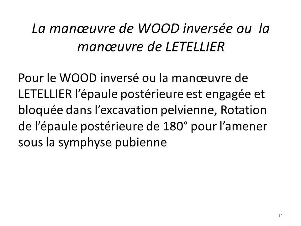 La manœuvre de WOOD inversée ou la manœuvre de LETELLIER Pour le WOOD inversé ou la manœuvre de LETELLIER l'épaule postérieure est engagée et bloquée