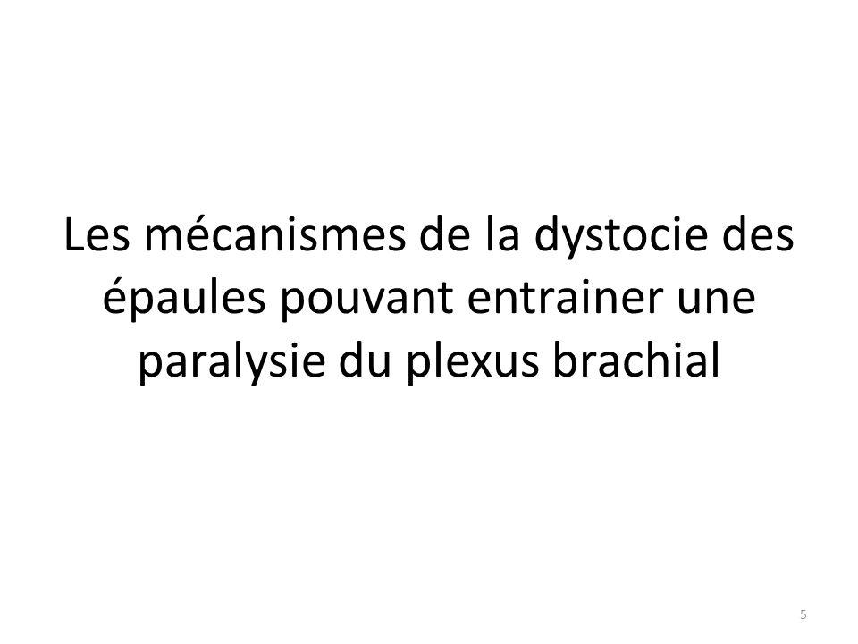 Les mécanismes de la dystocie des épaules pouvant entrainer une paralysie du plexus brachial 5