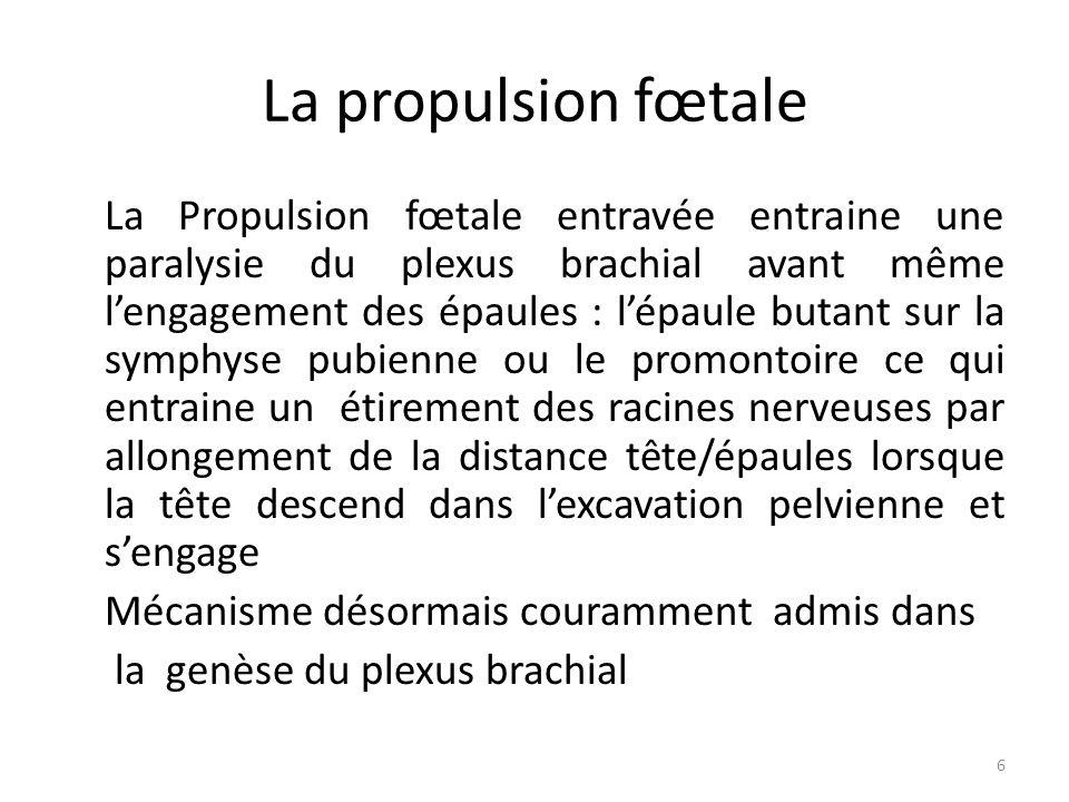 La propulsion fœtale La Propulsion fœtale entravée entraine une paralysie du plexus brachial avant même l'engagement des épaules : l'épaule butant sur