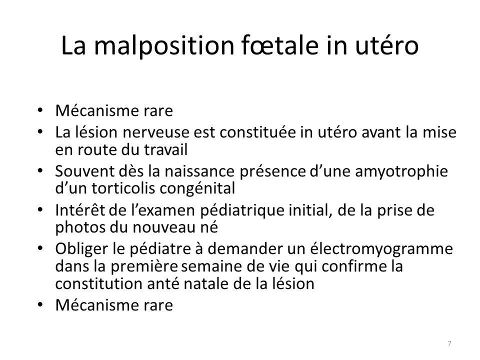 La malposition fœtale in utéro Mécanisme rare La lésion nerveuse est constituée in utéro avant la mise en route du travail Souvent dès la naissance pr