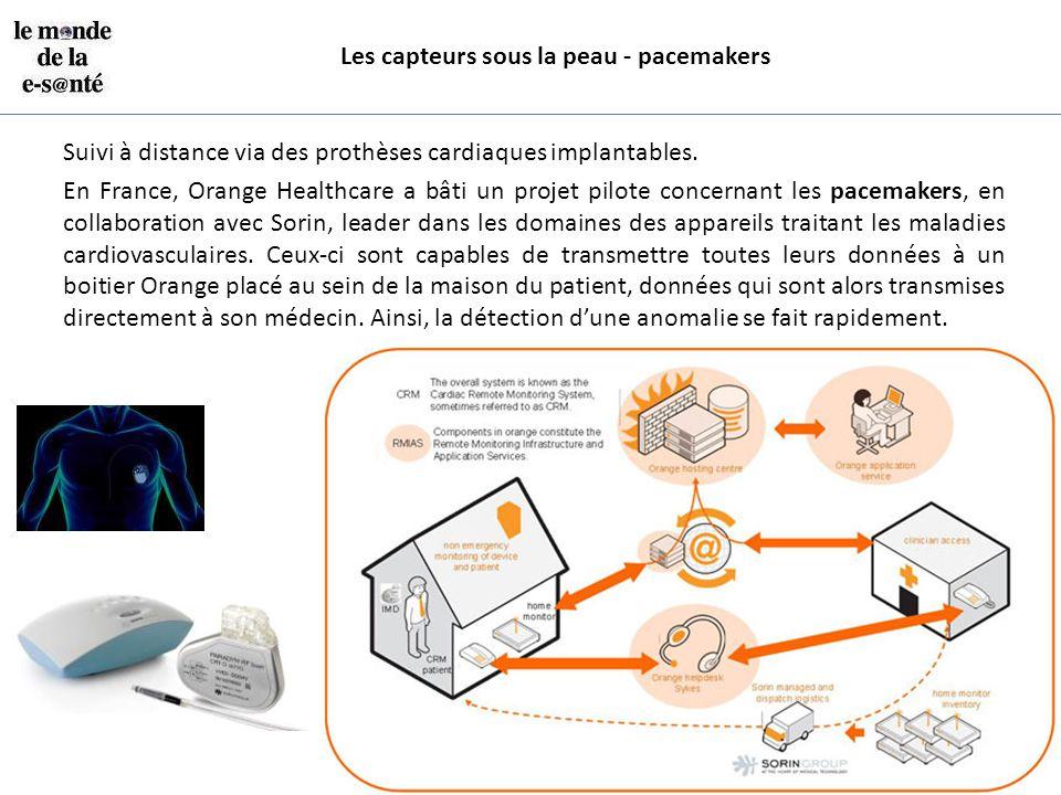 Les capteurs sous la peau - pacemakers Suivi à distance via des prothèses cardiaques implantables. En France, Orange Healthcare a bâti un projet pilot