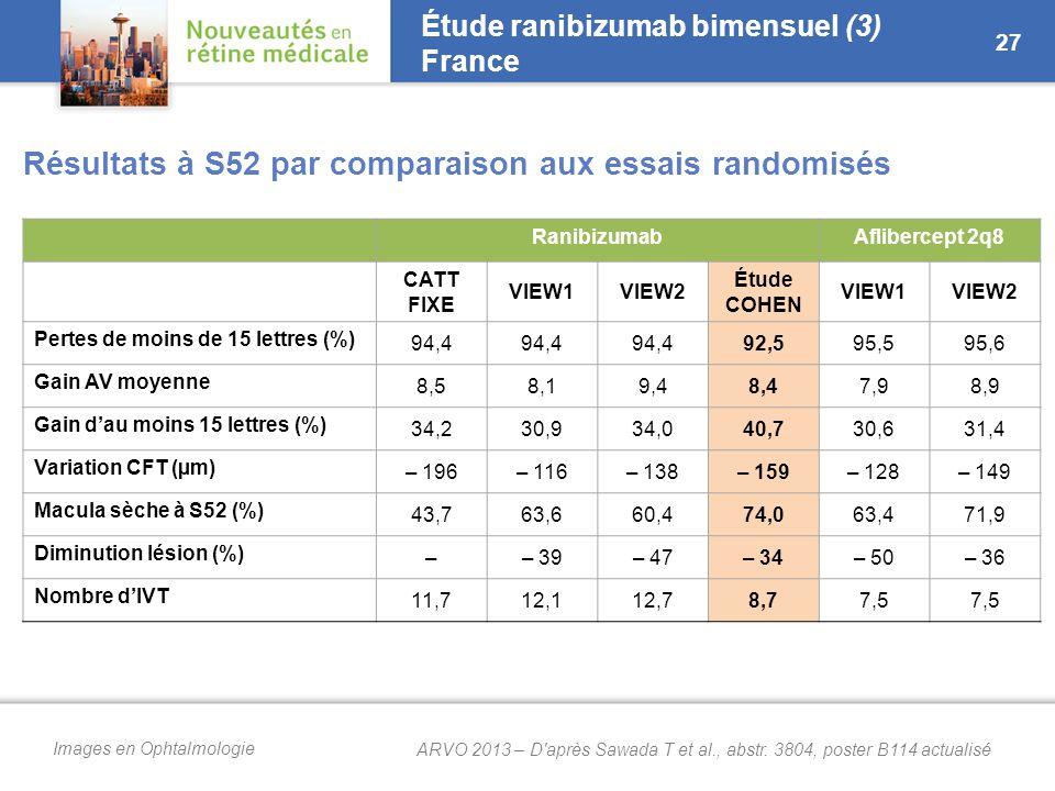Images en Ophtalmologie Étude ranibizumab bimensuel (3) France Résultats à S52 par comparaison aux essais randomisés 27 RanibizumabAflibercept 2q8 CATT FIXE VIEW1VIEW2 Étude COHEN VIEW1VIEW2 Pertes de moins de 15 lettres (%) 94,4 92,595,595,6 Gain AV moyenne 8,58,19,48,47,98,9 Gain d'au moins 15 lettres (%) 34,230,934,040,730,631,4 Variation CFT (µm) – 196– 116– 138– 159– 128– 149 Macula sèche à S52 (%) 43,763,660,474,063,471,9 Diminution lésion (%) –– 39– 47– 34– 50– 36 Nombre d'IVT 11,712,112,78,77,5 ARVO 2013 – D après Sawada T et al., abstr.