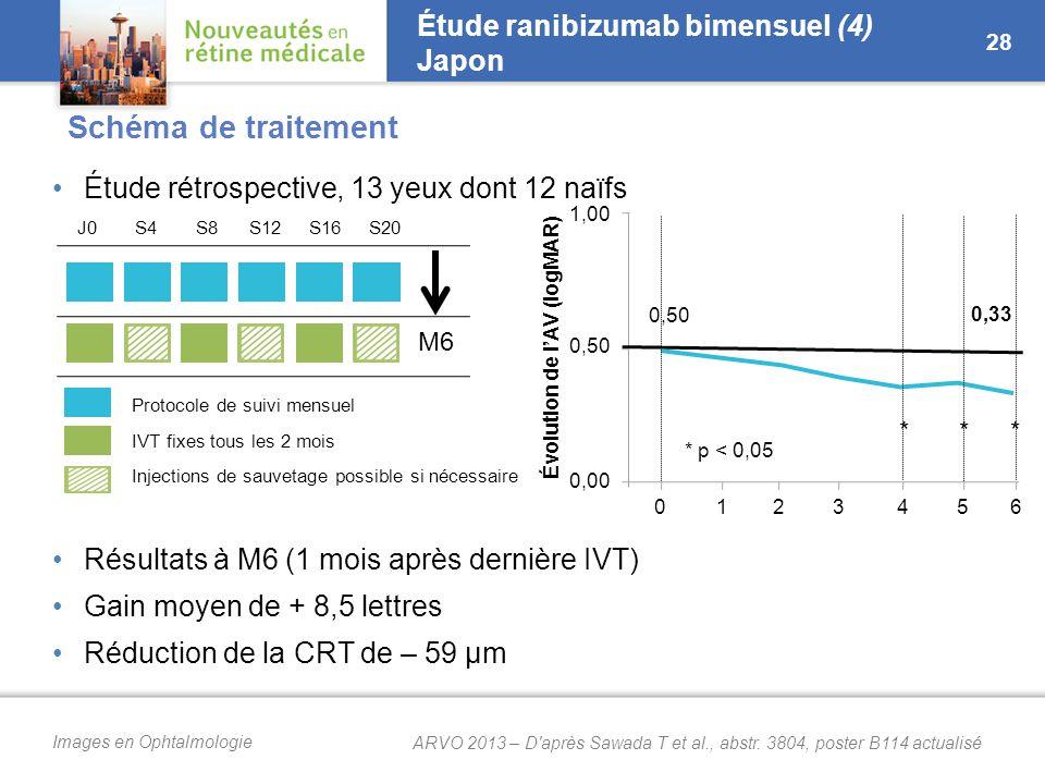 Images en Ophtalmologie Étude ranibizumab bimensuel (4) Japon Étude rétrospective, 13 yeux dont 12 naïfs Résultats à M6 (1 mois après dernière IVT) Gain moyen de + 8,5 lettres Réduction de la CRT de – 59 µm 28 M6 0,50 0,33 Évolution de l'AV (logMAR) *** * p < 0,05 0123456 1,00 0,50 0,00 Protocole de suivi mensuel IVT fixes tous les 2 mois Injections de sauvetage possible si nécessaire J0S4S8S12S16S20 Schéma de traitement ARVO 2013 – D après Sawada T et al., abstr.
