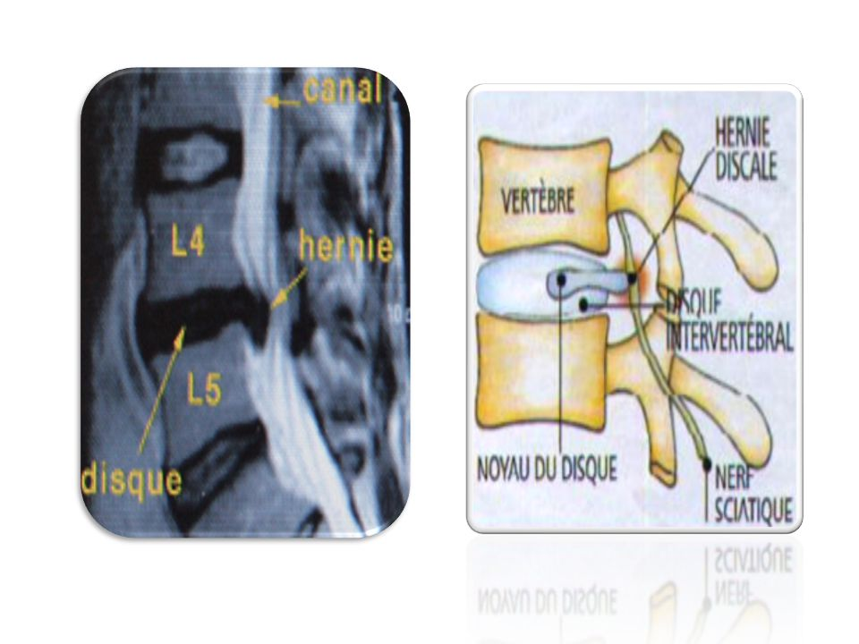 MOELLE SUBSTANCE GRISE corne dorsale CORNE DORSALE CORNE VENTRALE CORNE LATERALE SUBSTANCE GRISE VOIES ASCENDANTES VOIES DESCENDANTES SUBSTANCE BLANCHE