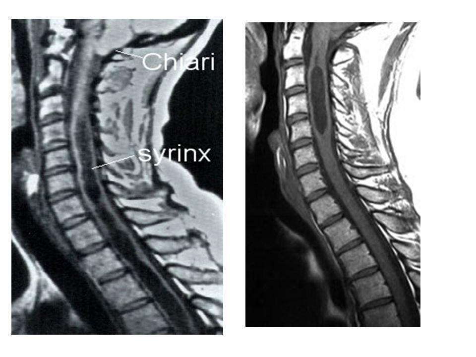 MOELLE SUBSTANCE BLANCHE voies descendantes>f.extrapyramidal Noyau vestibulaire Proche V4 Info labyrinthiques Corne ventrale Tonus muscles extenseurs CORDON POST FAISCEAU SPINO THALAMIQUE SYSTÈME SPINORETICULOTHALAMIQUE VOIES SPINOCEREBELLEUSES VOIES ASCENDANTES FAISCEAUX CORTICOSPINAUX FAISCEAU RUBROSPINAL FAISCEAU TECTOSPINAL FAISCEAUX VESTIBULOSPINAUX FAISCEAU RETICULOSPINAUX VOIES DESCENDANTES