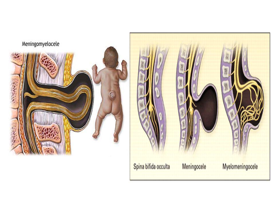 MOELLE SUBSTANCE BLANCHE voies descendantes>f.extrapyramidal Substance réticulée Pont+bulbe Faisceau réticulo spinal médian&latéral Corne ant >motoneurones alpha&gamma CORDON POST FAISCEAU SPINO THALAMIQUE SYSTÈME SPINORETICULOTHALAMIQUE VOIES SPINOCEREBELLEUSES VOIES ASCENDANTES FAISCEAUX CORTICOSPINAUX FAISCEAU RUBROSPINAL FAISCEAU TECTOSPINAL FAISCEAUX VESTIBULOSPINAUX FAISCEAU RETICULOSPINAUX VOIES DESCENDANTES