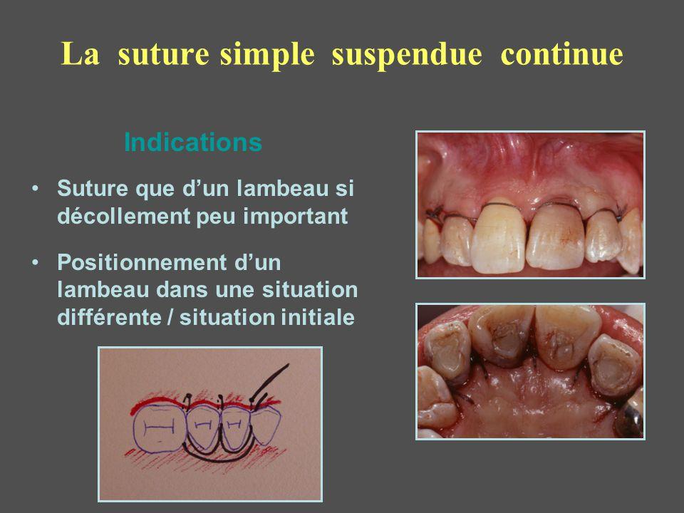 La suture simple suspendue continue Suture que d'un lambeau si décollement peu important Positionnement d'un lambeau dans une situation différente / s