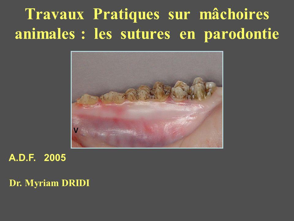 Travaux Pratiques sur mâchoires animales : les sutures en parodontie V A.D.F. 2005 Dr. Myriam DRIDI