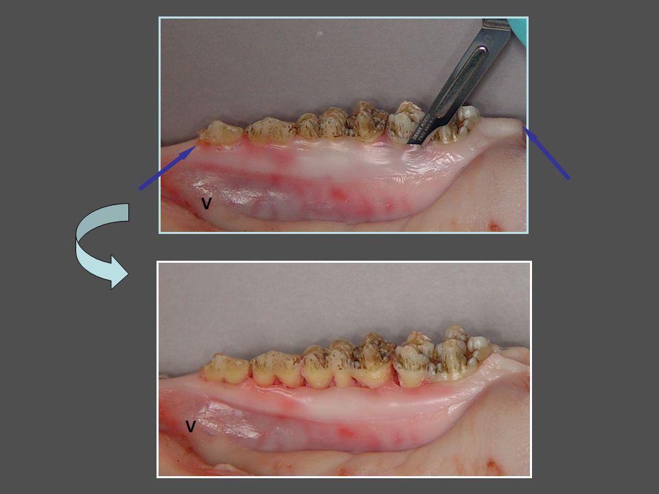 Le point de Matelassier horizontal Les mêmes que le matelassier vertical si gencive réduite ou papille fissurée ou papille large Indications