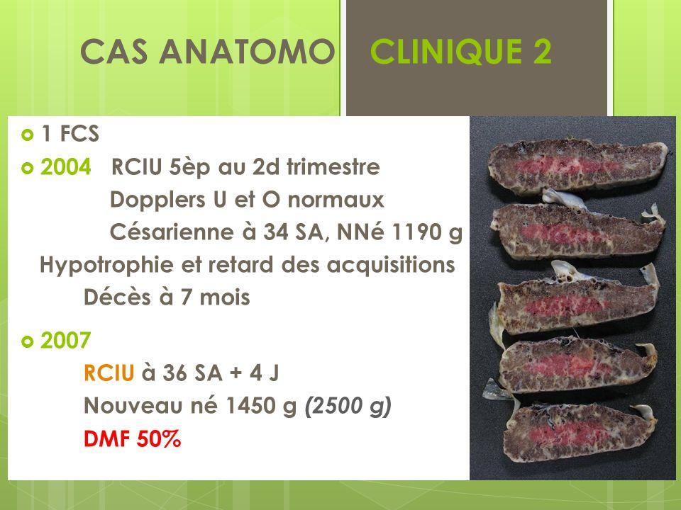 CAS ANATOMO - CLINIQUE 2  2010 IVè geste, IIIè pare RCIU sévère < 3è p à 22 SA IMG à 24 SA : 482 g (630 g) DMF 60 %