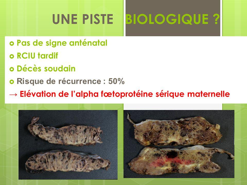 UNE PISTE BIOLOGIQUE .