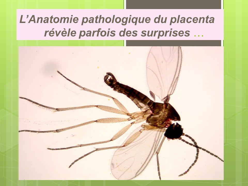 L'Anatomie pathologique du placenta révèle parfois des surprises …